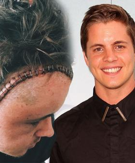 Johnny Ruffo Is Officially Cancer-Free