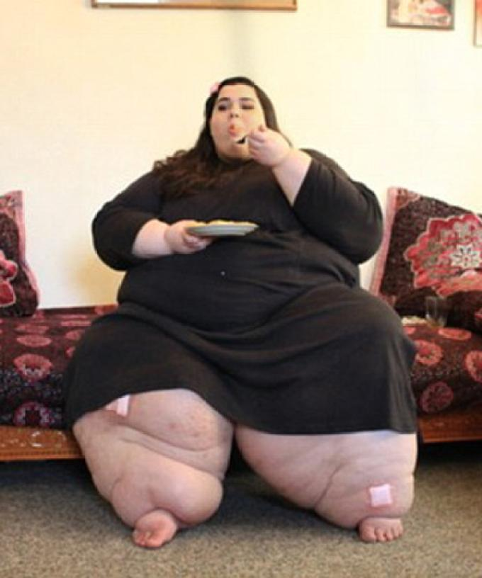 Morbidly Obese Woman Loses Half Her Body Weight After
