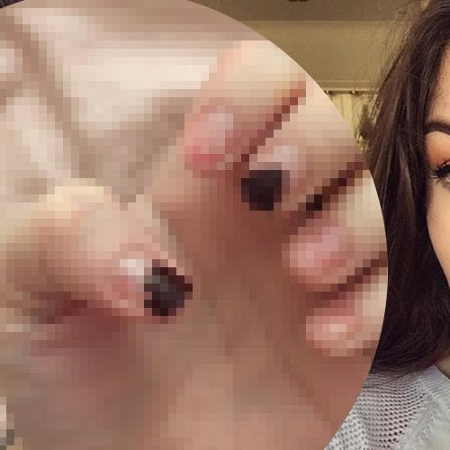 Thought Dr Pimple Popper Was Gross? Wait Till You See This!