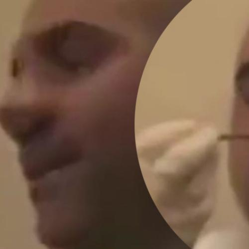Aussie Man Is Horrified To Find 1.5M Tapeworm In His Nose