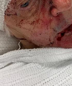 Police Make Desperate Appeal After 84-Year-Old Woman Is Assaulted At Sydney Retirement Village