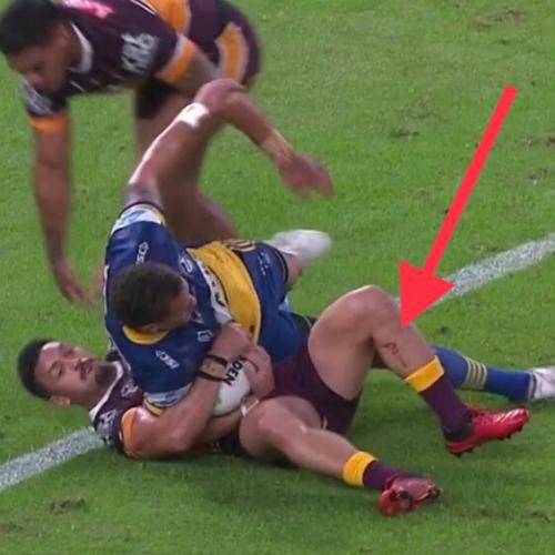 Broncos Captain Alex Glenn Will Undergo Surgery After Suffering Serious Leg Laceration