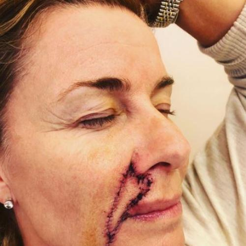 Deborah Hutton Shares Pictures Of Her Scars Following Skin Cancer Removal