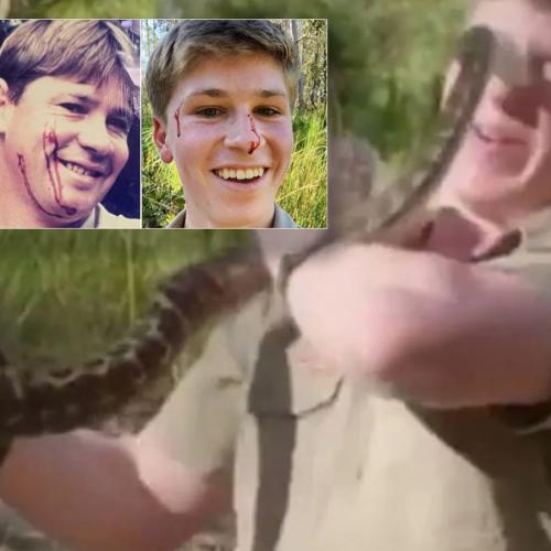Robert Irwin Cops Snake Bite To The Face Similar To Attack On Steve Decades Earlier