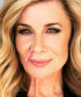 Deborah Hutton Opens Up About Her Harrowing Battle With Skin Cancer