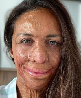 "Don't You DARE Say ""What Doesn't Kill You Makes You Stronger"" To Turia Pitt"