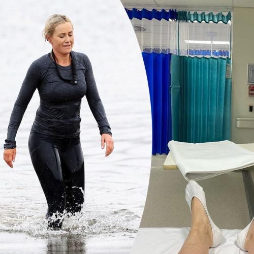 Roxy Jacenko Proves That Her Hip And Pelvis Injury Was The Reason She Quit 'SAS Australia'