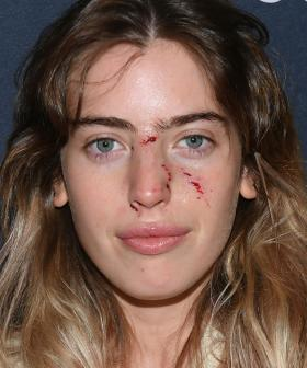 Ewan McGregor's Daughter Bitten By Dog Just 30 Minutes Before Red Carpet Appearance