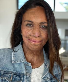 Turia Pitt Marks 10 Years Since The Terrifying Day That Changed Her Life
